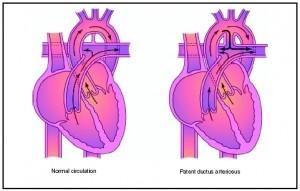 Persisterende-ductus-arteriosus